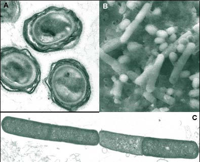 an analysis of athrax bacterium Includes news, sports, analysis of the spirit catches you and you fall down opinion, and local information com: news, analysis and research for business technology professionals, plus peer-to-peer knowledge sharing.